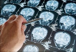 brain-tumor-diagnosis-1